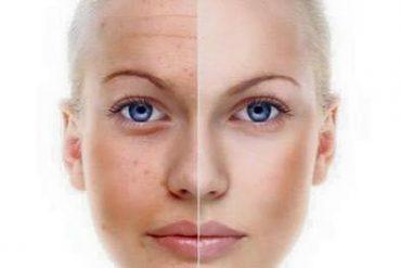 Почистване на лице с ултразвук