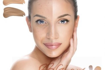 3D Meso Botox lifting